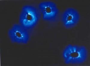 La photographie Kirlian, reflet de la santé bioélectrique